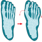 Illustration Hallux valgus