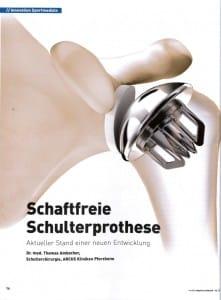 MSN_2-13_Schaftfreie-Schulterprothese