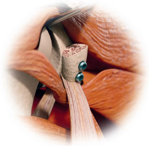 Aufbau des Pfannenrands mit Versatz des sog. Rabenschnabelfortsatzes (Coracoid)