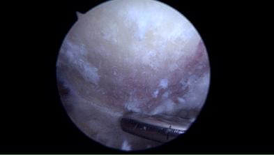 Arthroskopisches Abschleifen des Schulterdachs mit einer speziellen Fräse