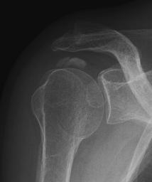 Röntgenbild mit Kalkdepot in der Supraspinatussehne
