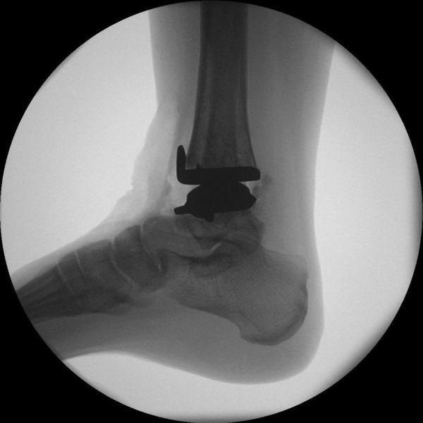 Röntgenbild Post-OP