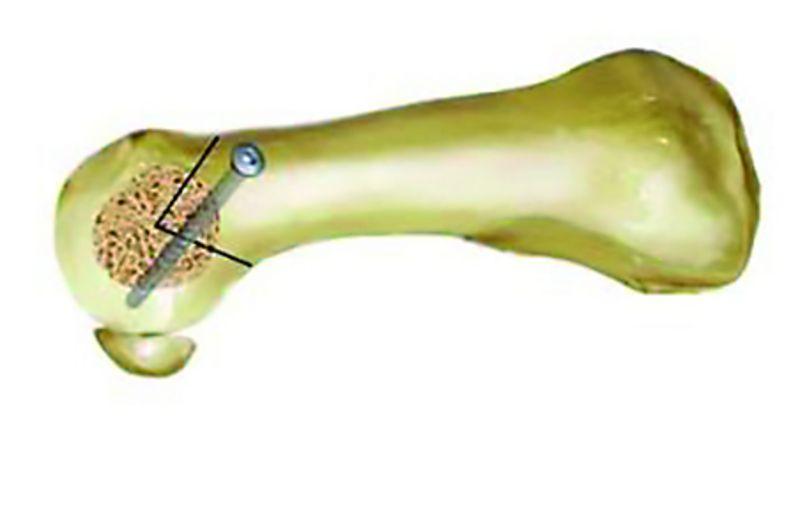 Chevron-Osteotomie (Quelle: Gesellschaft für Fußchirurgie)