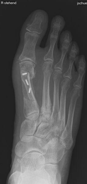 Röntgenbild Scarf Post-OP