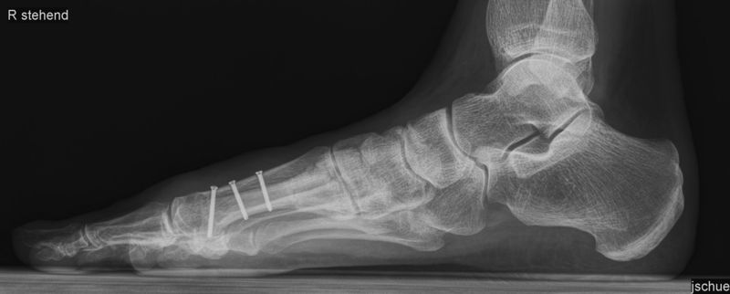 Röntgenbild Scarf Post-OP, seitlich