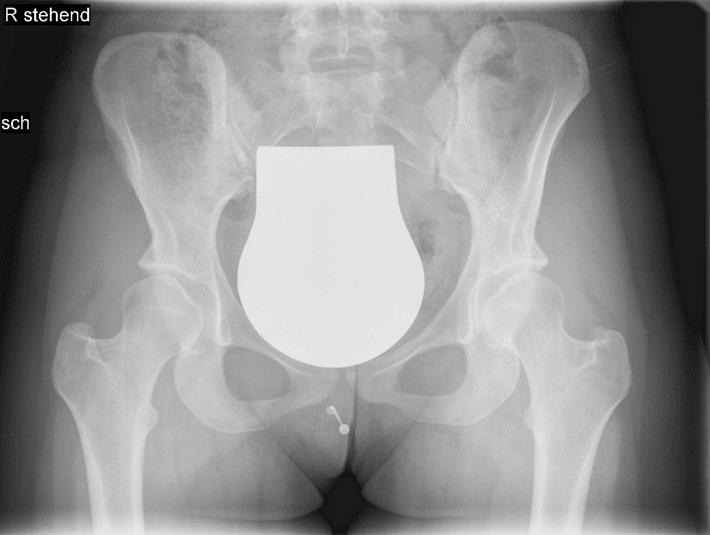 Röntgen Aufnahme des Beckens mit einer beidseitigen Hüftdysplasie