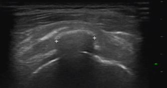 Ultraschall der Schulter mit Kalkdepot in der Supraspinatussehne