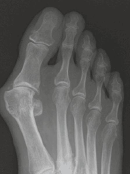 Röntgenbild Hallux Valgus Prä-OP