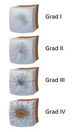 Arthrosegradeinteilung