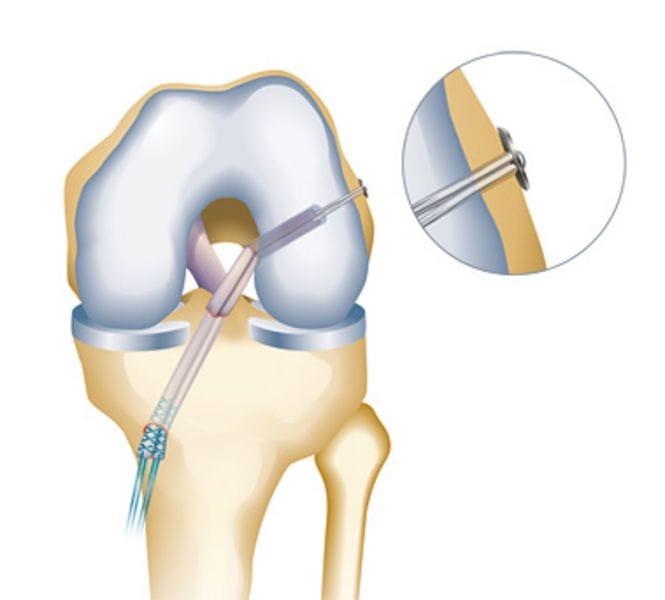 Fixation des VKB-Ersatzes: Endobutton® bzw. Retrobutton