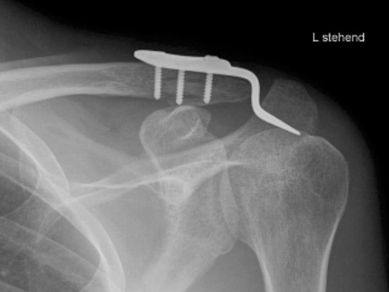 anatomische Stellung der Bruchstücke nach Einrichten und Stabilisierung mit Metallplatte