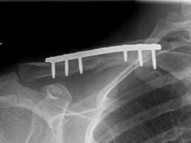 Schlüsselbeinbruch, der mit einer Metallplatte stabilisiert wurd